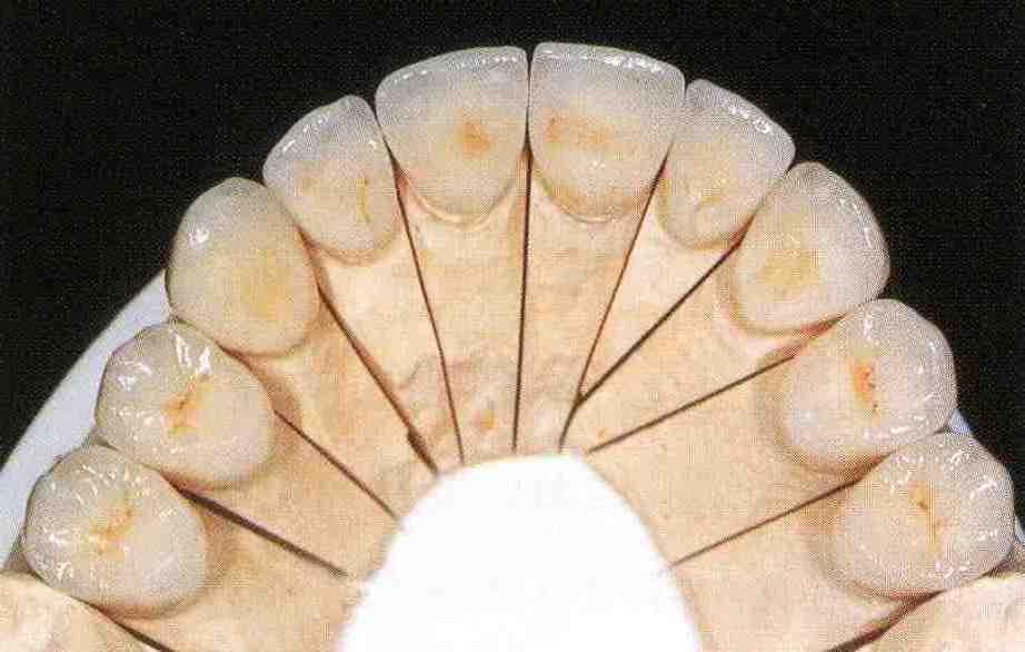 implant056.jpg